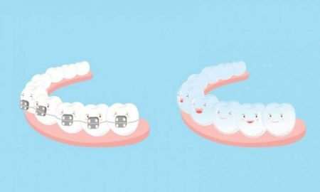 DIY Orthodontics