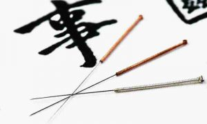 Do It Yourself Acupuncture